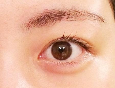 目のクマ.jpg